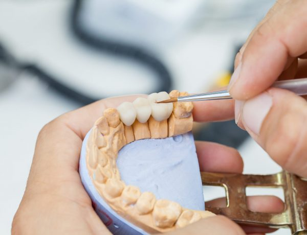 dental technician works by brush with jaw model