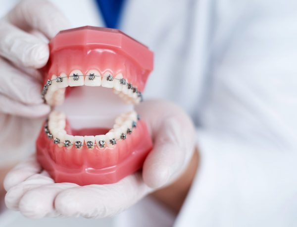 doctor orthodontist shows how the system of braces on teeth is arranged