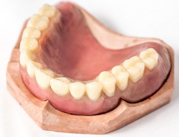 Immediate denture Upper