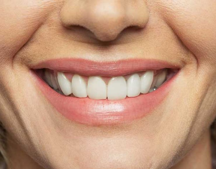 How-Full-or-Partial-Dentures-Can-Help-You-Get-Your-Smile-Back