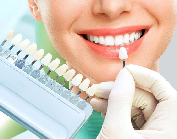 close-up-portrait-young-women-dentist-chair-check-select-color-teeth-dentist-make2