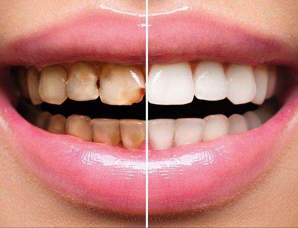 restorative-dentistry-crown-dental